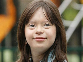 پرستاری از کودک مبتلا به سندروم دان